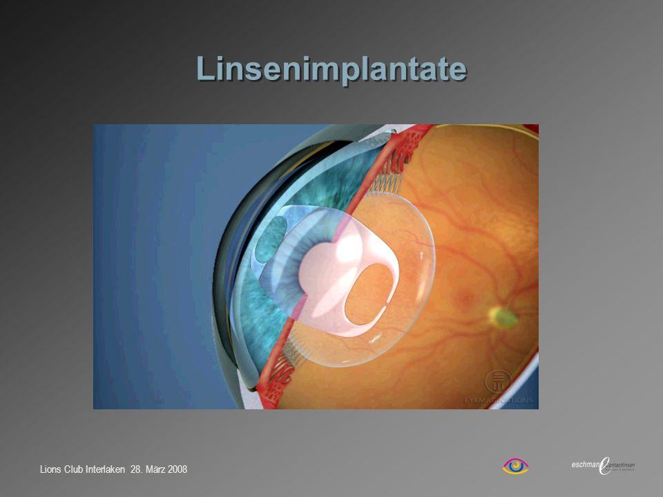 Lions Club Interlaken 28. März 2008 Linsenimplantate