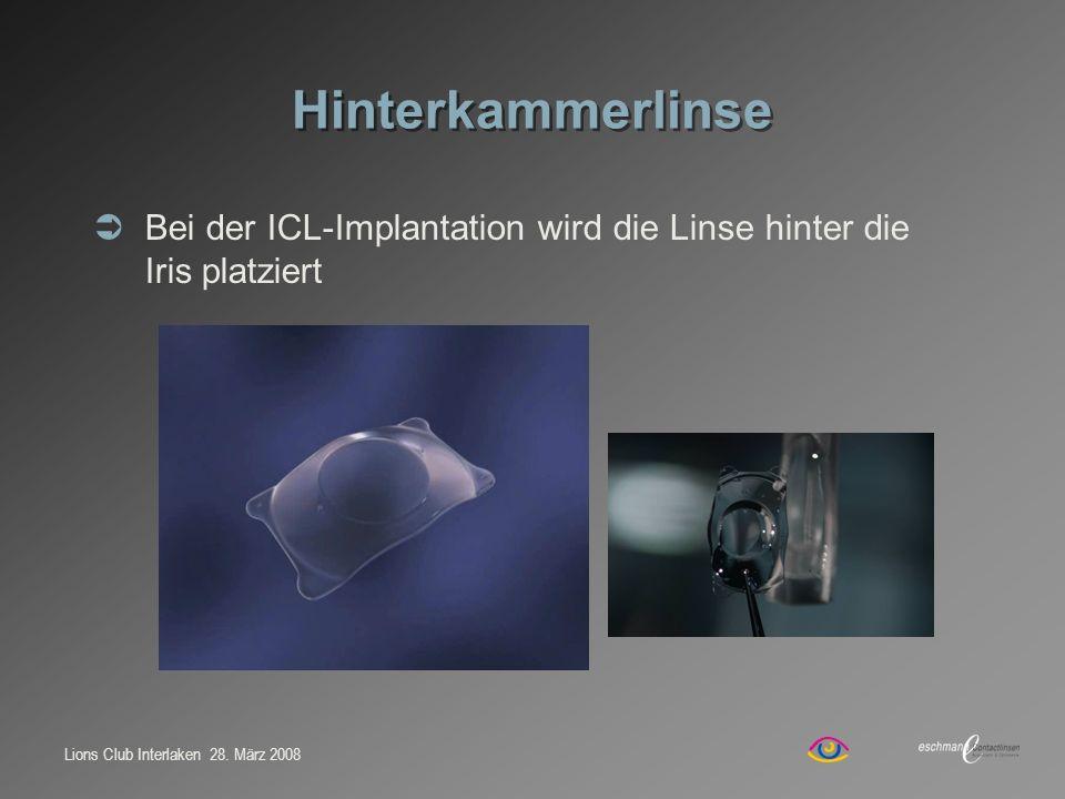 Lions Club Interlaken 28. März 2008 Hinterkammerlinse Bei der ICL-Implantation wird die Linse hinter die Iris platziert