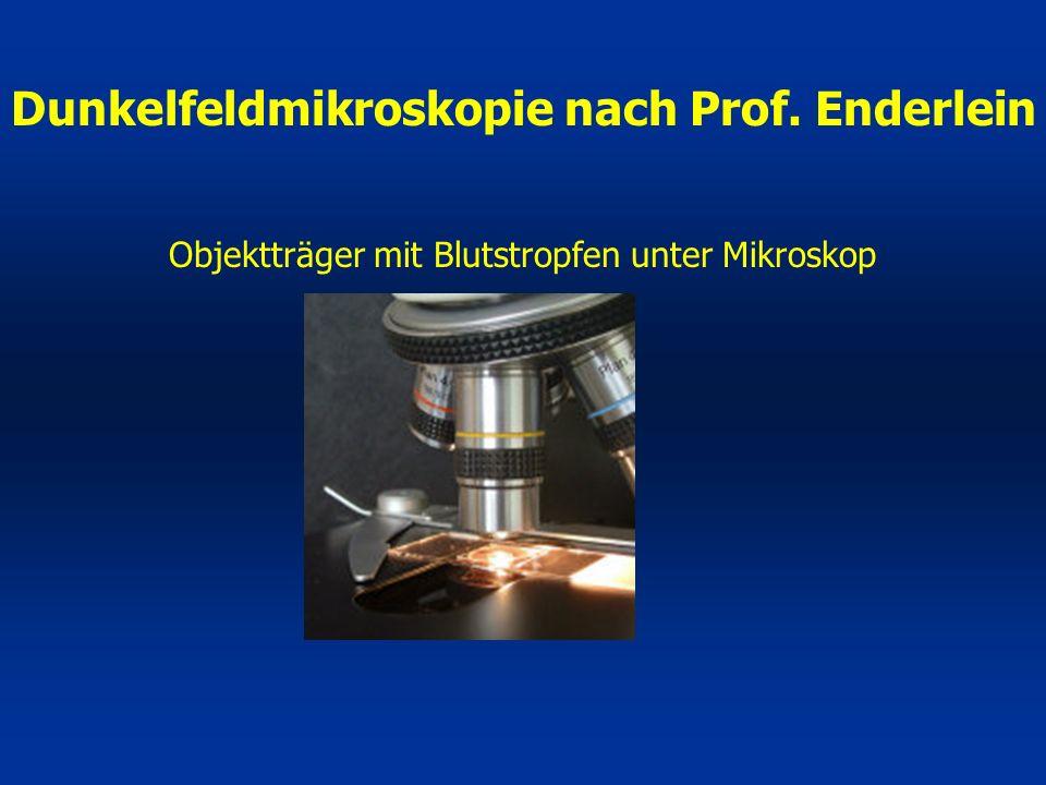Objektträger mit Blutstropfen unter Mikroskop Dunkelfeldmikroskopie nach Prof. Enderlein