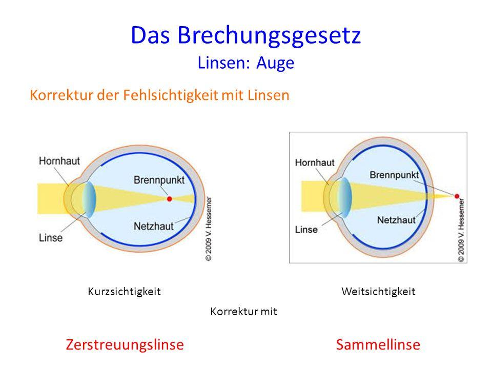 Das Brechungsgesetz Linsen: Auge Korrektur der Fehlsichtigkeit mit Linsen KurzsichtigkeitWeitsichtigkeit Korrektur mit ZerstreuungslinseSammellinse