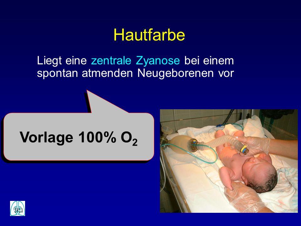 Hautfarbe Liegt eine zentrale Zyanose bei einem spontan atmenden Neugeborenen vor Vorlage 100% O 2