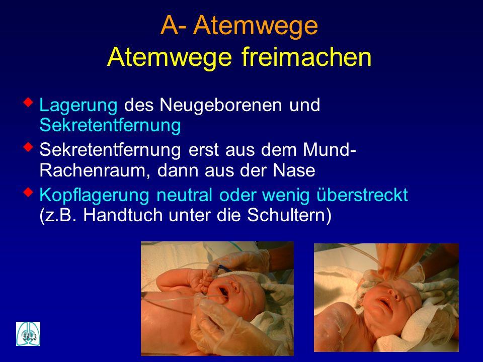 Lagerung des Neugeborenen und Sekretentfernung Sekretentfernung erst aus dem Mund- Rachenraum, dann aus der Nase Kopflagerung neutral oder wenig übers