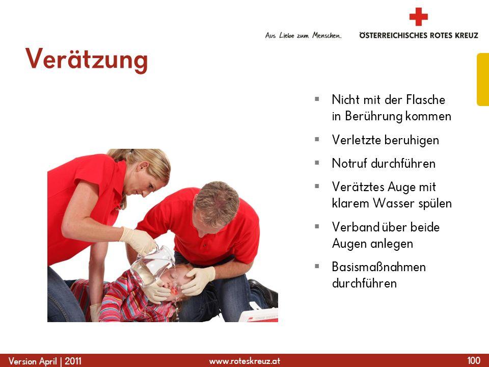 www.roteskreuz.at Version April | 2011 Verätzung 100 Nicht mit der Flasche in Berührung kommen Verletzte beruhigen Notruf durchführen Verätztes Auge m