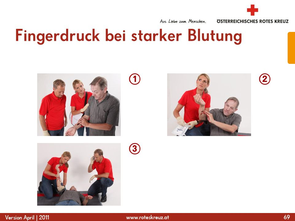 www.roteskreuz.at Version April | 2011 Fingerdruck bei starker Blutung 69