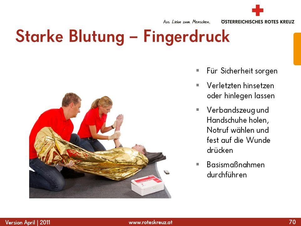 www.roteskreuz.at Version April | 2011 Starke Blutung – Fingerdruck 70 Für Sicherheit sorgen Verletzten hinsetzen oder hinlegen lassen Verbandszeug un
