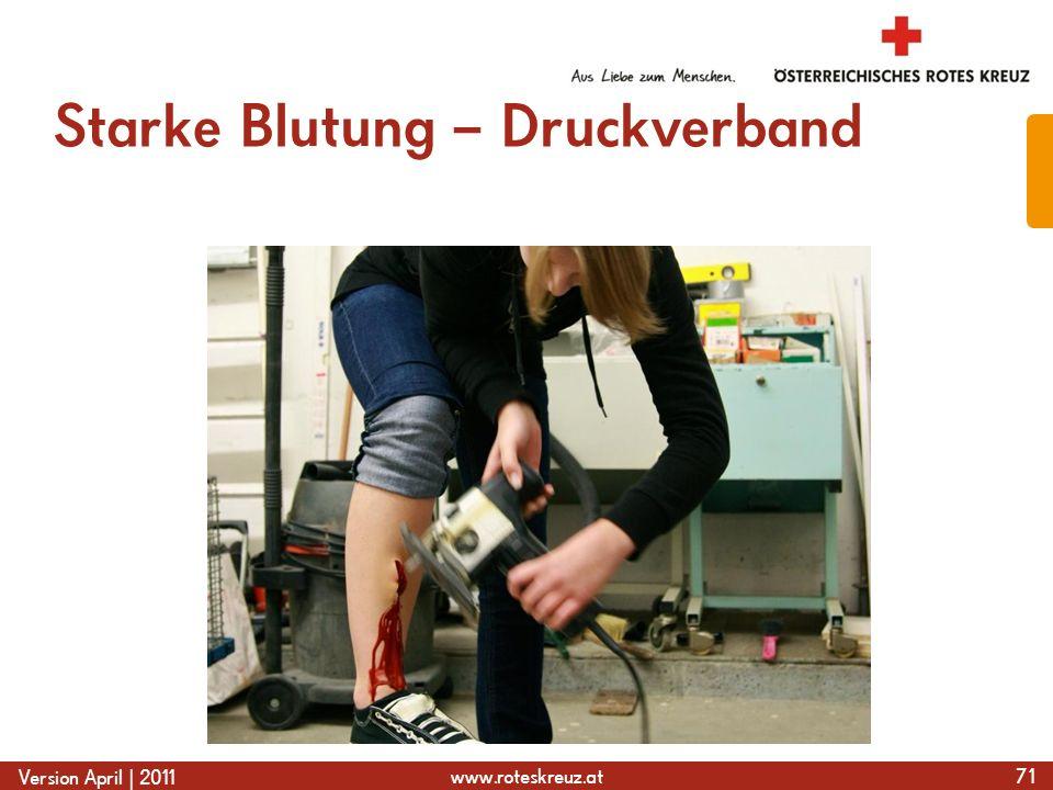www.roteskreuz.at Version April | 2011 Starke Blutung – Druckverband 71