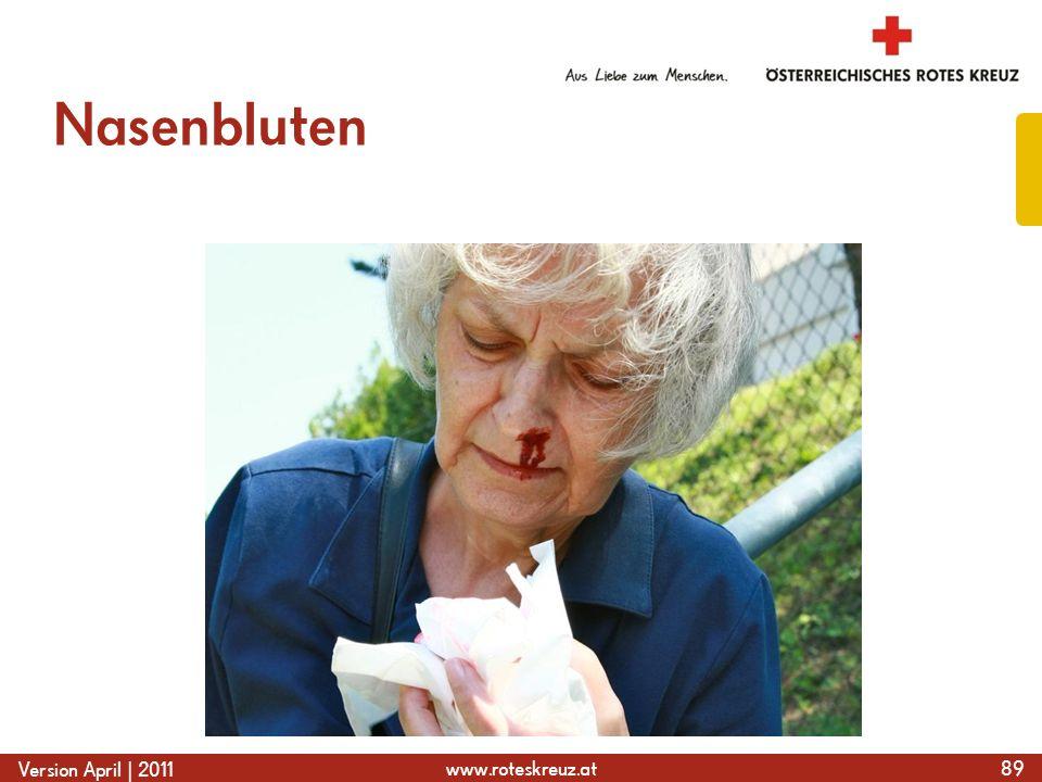 www.roteskreuz.at Version April | 2011 Nasenbluten 89