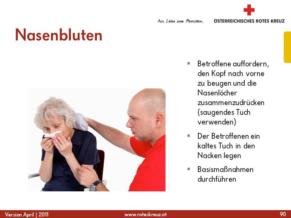 www.roteskreuz.at Version April | 2011 Nasenbluten 90 Betroffene auffordern, den Kopf nach vorne zu beugen und die Nasenlöcher zusammenzudrücken (saug