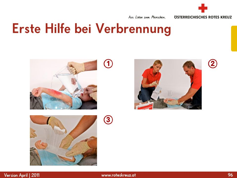 www.roteskreuz.at Version April | 2011 Erste Hilfe bei Verbrennung 96