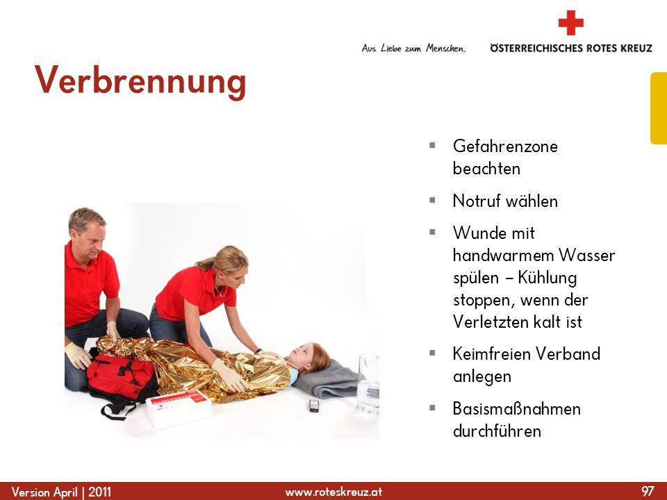 www.roteskreuz.at Version April | 2011 Verbrennung 97 Gefahrenzone beachten Notruf wählen Wunde mit handwarmem Wasser spülen – Kühlung stoppen, wenn d