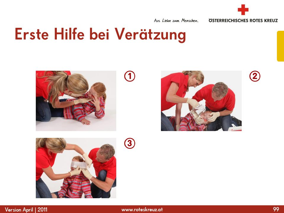 www.roteskreuz.at Version April | 2011 Erste Hilfe bei Verätzung 99