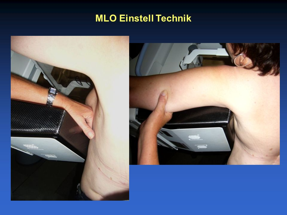 MLO Einstell Technik