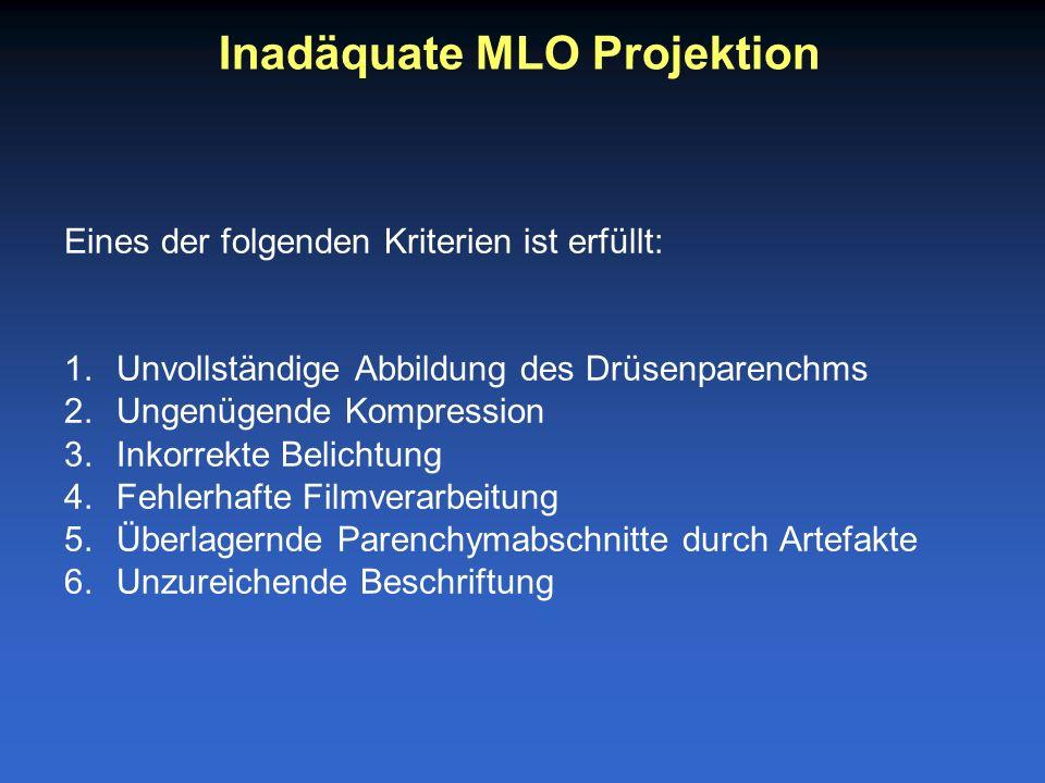 Eines der folgenden Kriterien ist erfüllt: 1.Unvollständige Abbildung des Drüsenparenchms 2.Ungenügende Kompression 3.Inkorrekte Belichtung 4.Fehlerhafte Filmverarbeitung 5.Überlagernde Parenchymabschnitte durch Artefakte 6.Unzureichende Beschriftung Inadäquate MLO Projektion