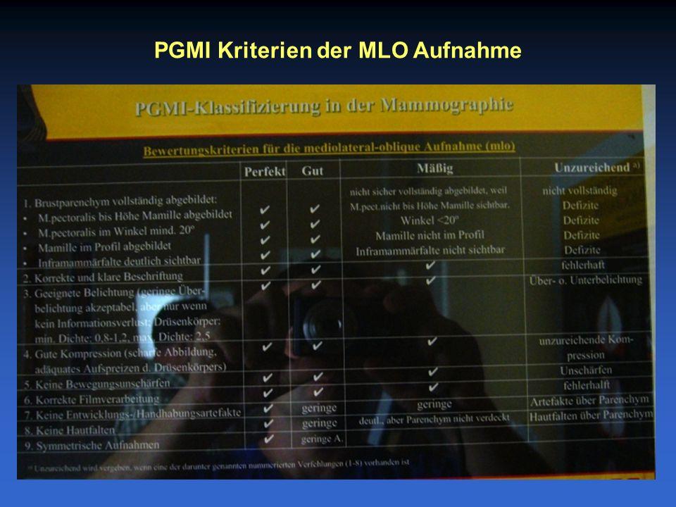 PGMI Kriterien der MLO Aufnahme