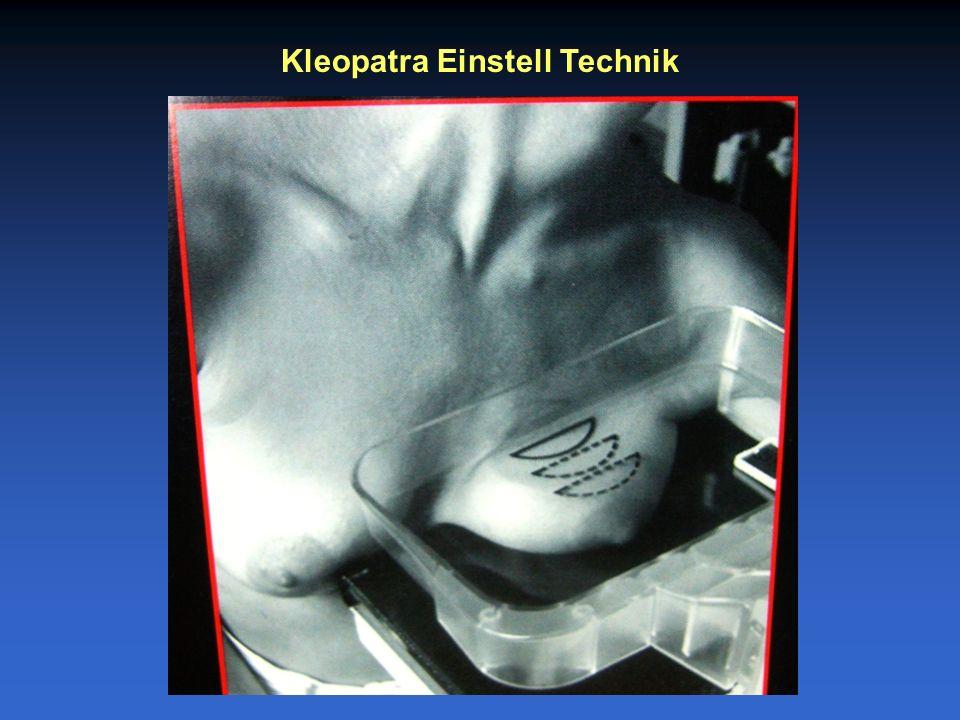 Kleopatra Einstell Technik