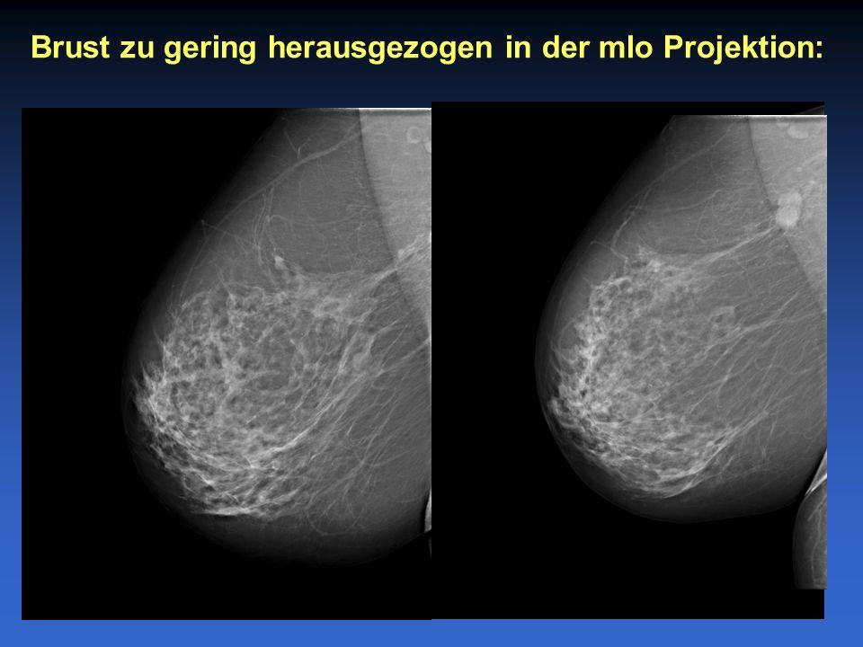 Brust zu gering herausgezogen in der mlo Projektion: