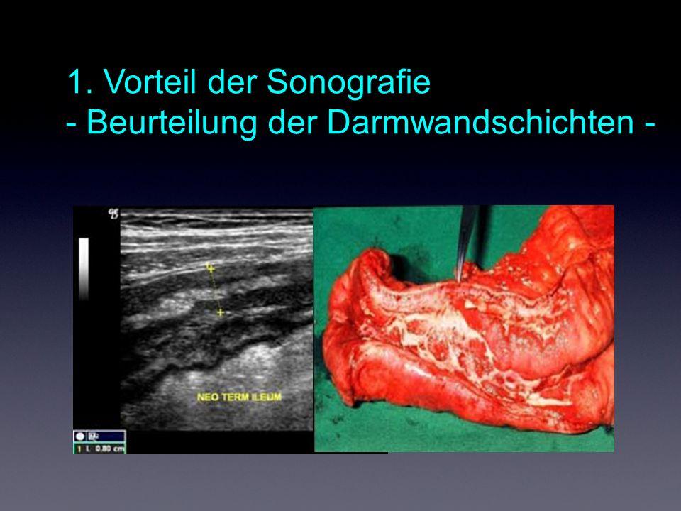 1. Vorteil der Sonografie - Beurteilung der Darmwandschichten -
