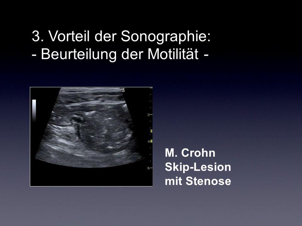 3. Vorteil der Sonographie: - Beurteilung der Motilität - M. Crohn Skip-Lesion mit Stenose