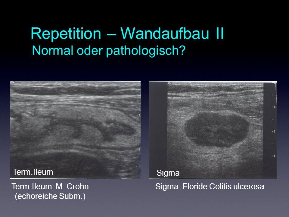 Repetition – Wandaufbau II Normal oder pathologisch.