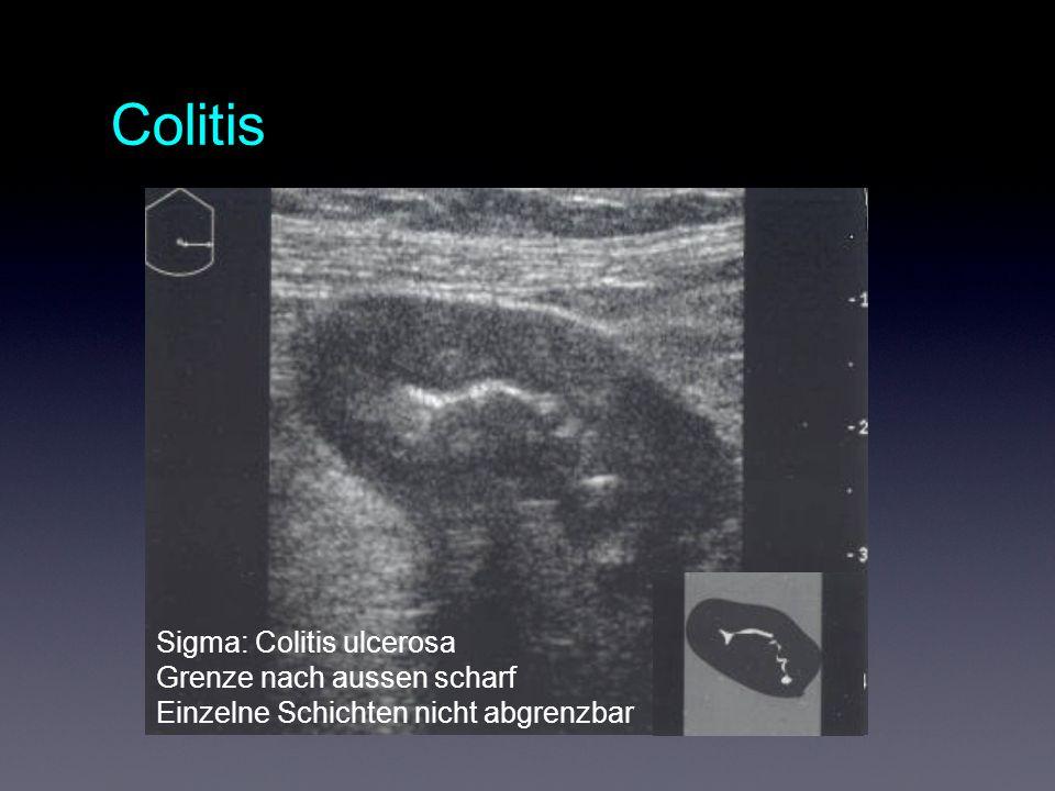 Colitis Sigma: Colitis ulcerosa Grenze nach aussen scharf Einzelne Schichten nicht abgrenzbar