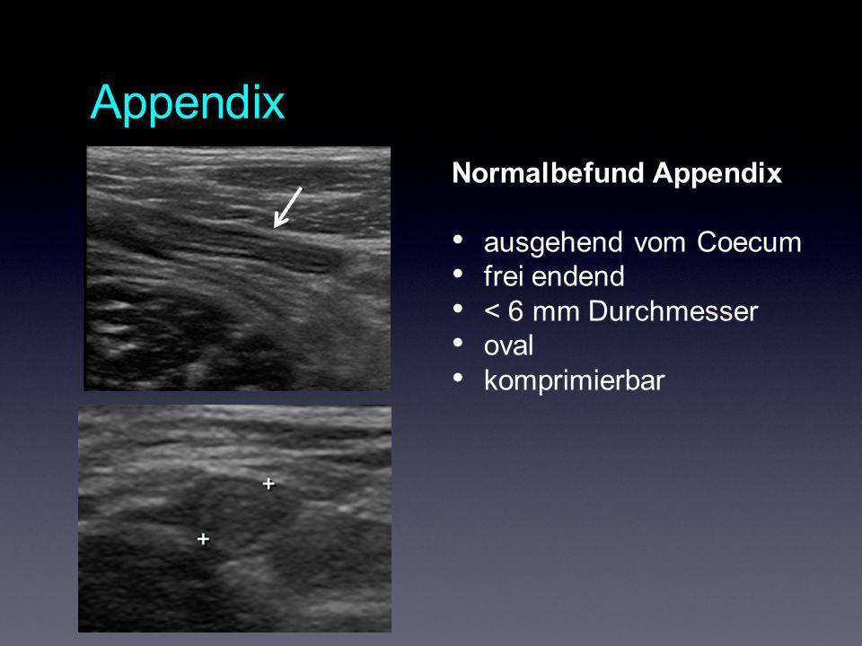 Appendix Normalbefund Appendix ausgehend vom Coecum frei endend < 6 mm Durchmesser oval komprimierbar