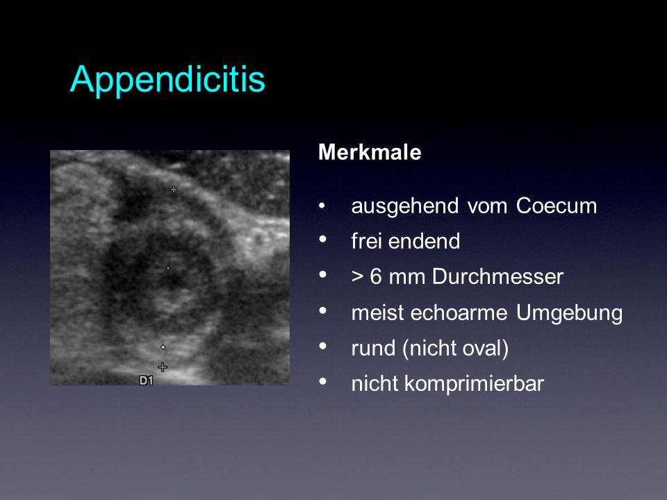 Merkmale ausgehend vom Coecum frei endend > 6 mm Durchmesser meist echoarme Umgebung rund (nicht oval) nicht komprimierbar Appendicitis