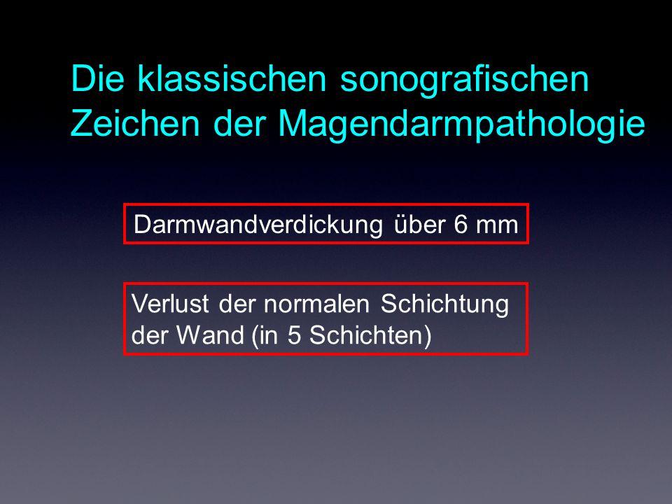 Die klassischen sonografischen Zeichen der Magendarmpathologie Darmwandverdickung über 6 mm Verlust der normalen Schichtung der Wand (in 5 Schichten)