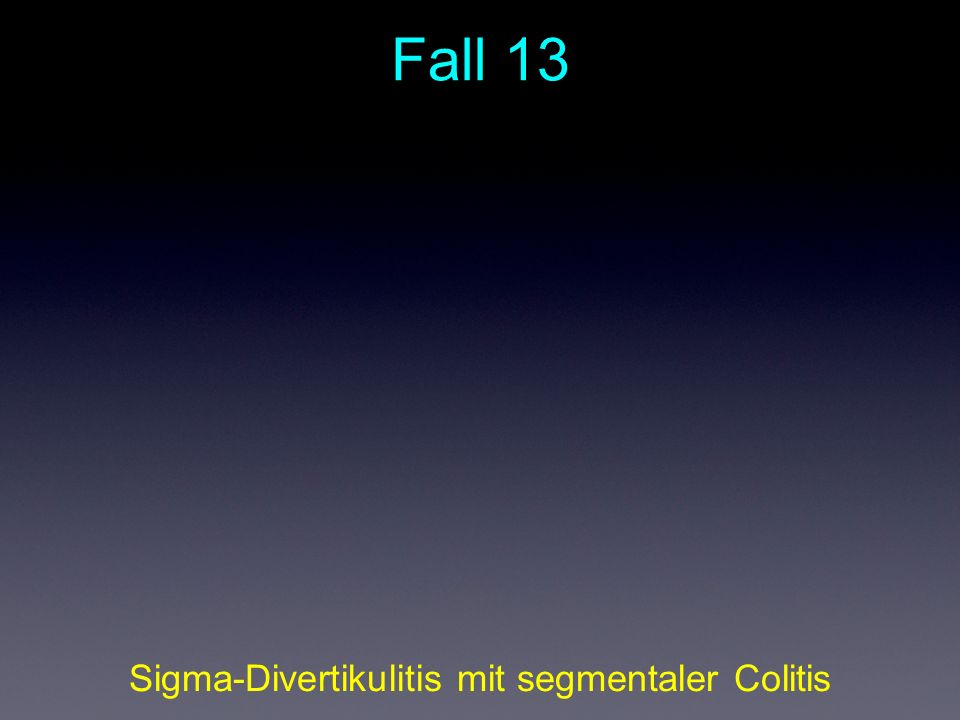 Fall 13 Sigma-Divertikulitis mit segmentaler Colitis