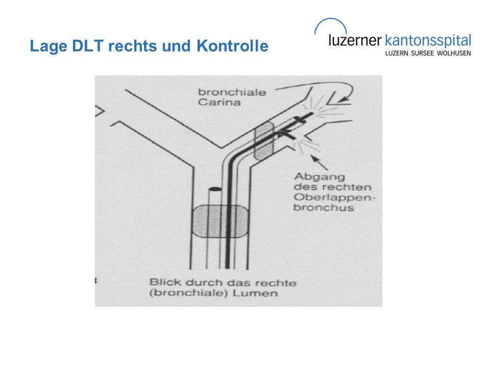 Lage DLT rechts und Kontrolle
