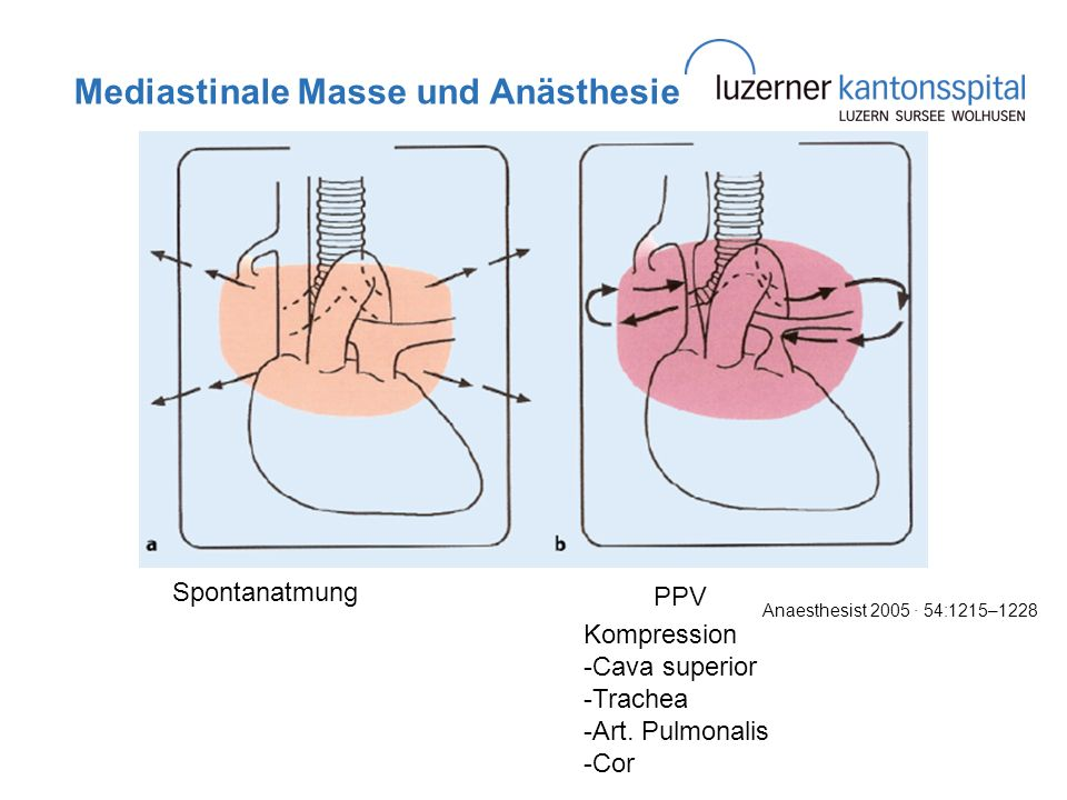 Mediastinale Masse und Anästhesie Spontanatmung PPV Kompression -Cava superior -Trachea -Art. Pulmonalis -Cor Anaesthesist 2005 · 54:1215–1228