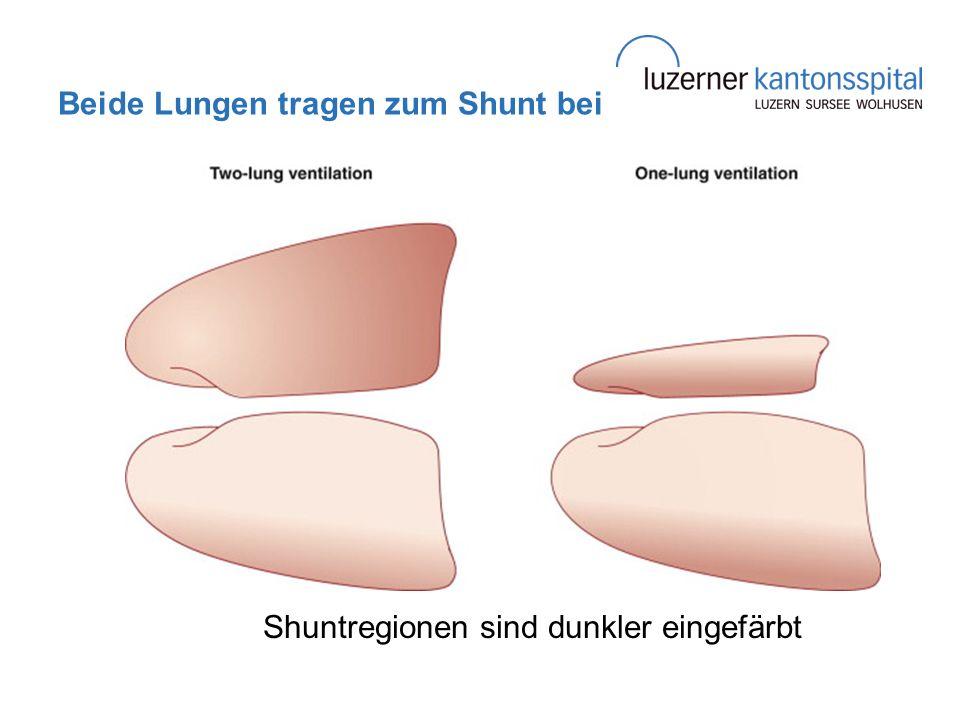 Beide Lungen tragen zum Shunt bei Shuntregionen sind dunkler eingefärbt