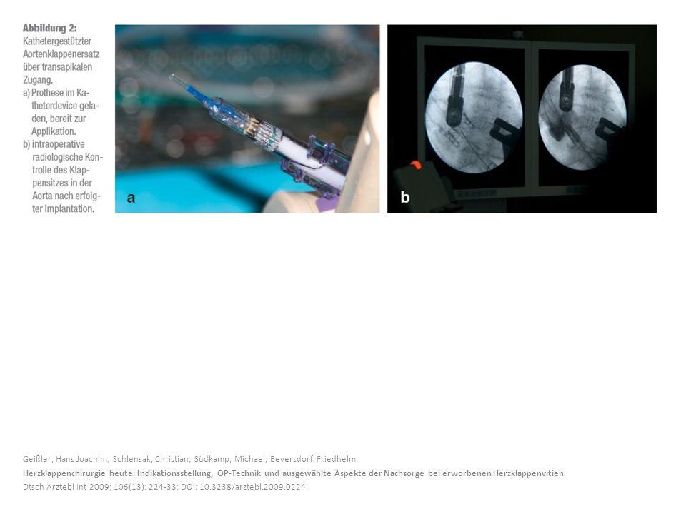 Geißler, Hans Joachim; Schlensak, Christian; Südkamp, Michael; Beyersdorf, Friedhelm Herzklappenchirurgie heute: Indikationsstellung, OP-Technik und a
