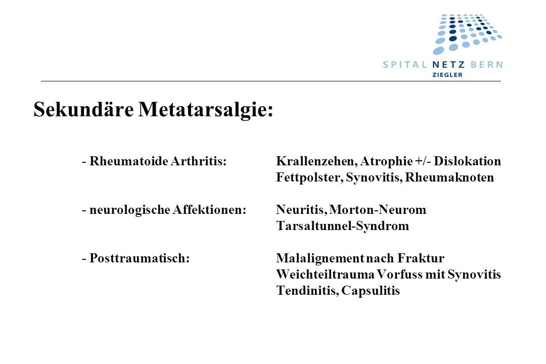 Sekundäre Metatarsalgie: - Rheumatoide Arthritis:Krallenzehen, Atrophie +/- Dislokation Fettpolster, Synovitis, Rheumaknoten - neurologische Affektion