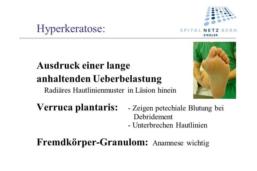 Hyperkeratose: Ausdruck einer lange anhaltenden Ueberbelastung Radiäres Hautlinienmuster in Läsion hinein Verruca plantaris: - Zeigen petechiale Blutu