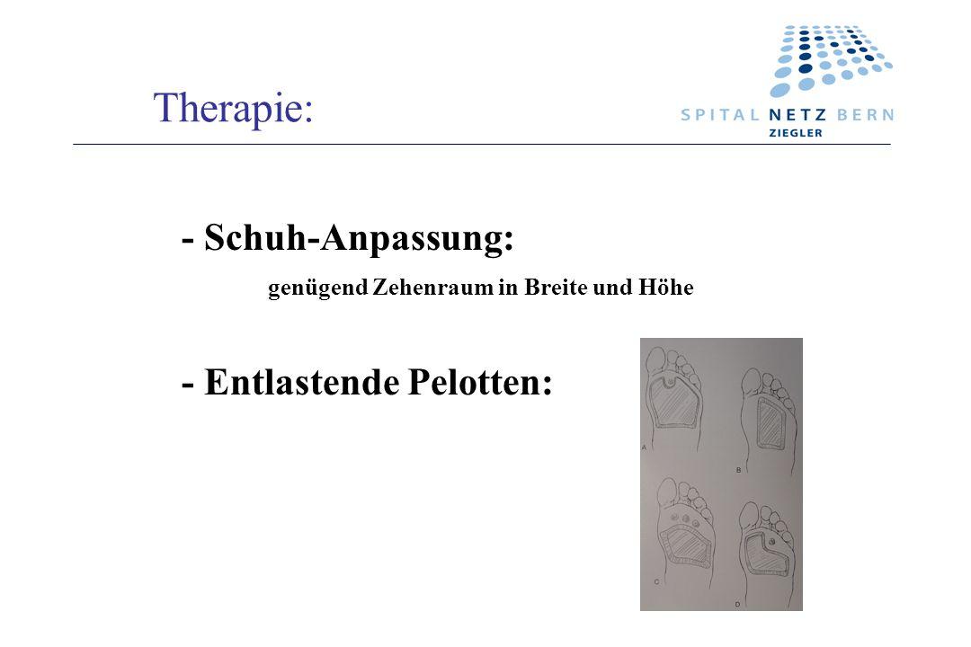 Therapie: - Schuh-Anpassung: genügend Zehenraum in Breite und Höhe - Entlastende Pelotten: