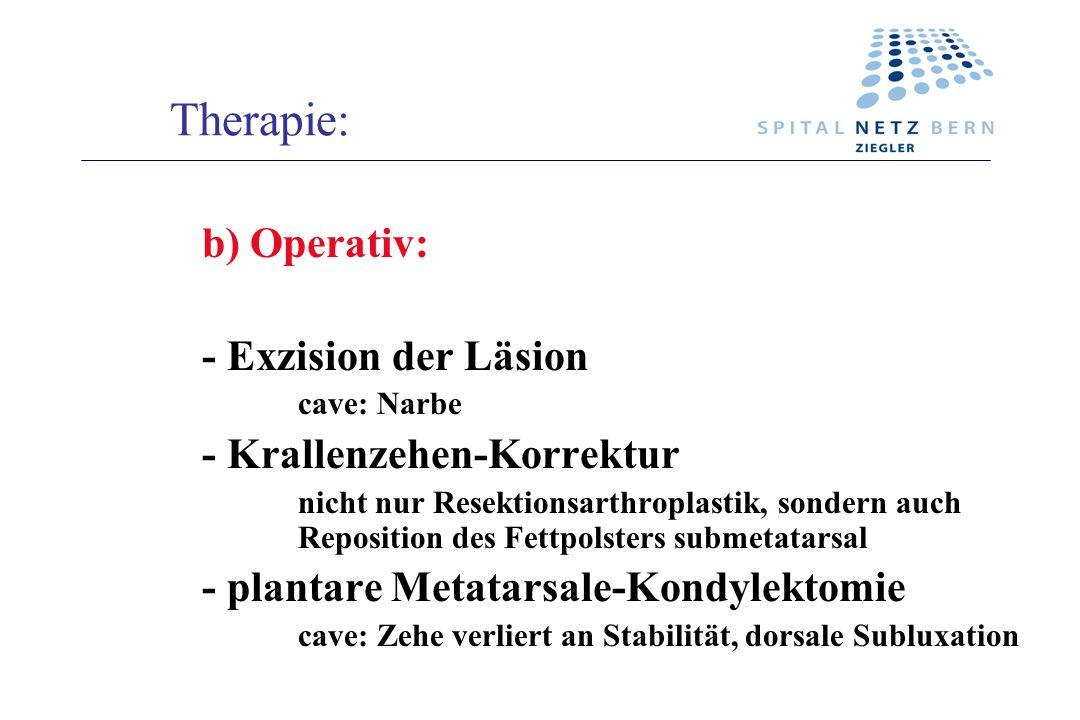 Therapie: b)Operativ: - Exzision der Läsion cave: Narbe - Krallenzehen-Korrektur nicht nur Resektionsarthroplastik, sondern auch Reposition des Fettpo