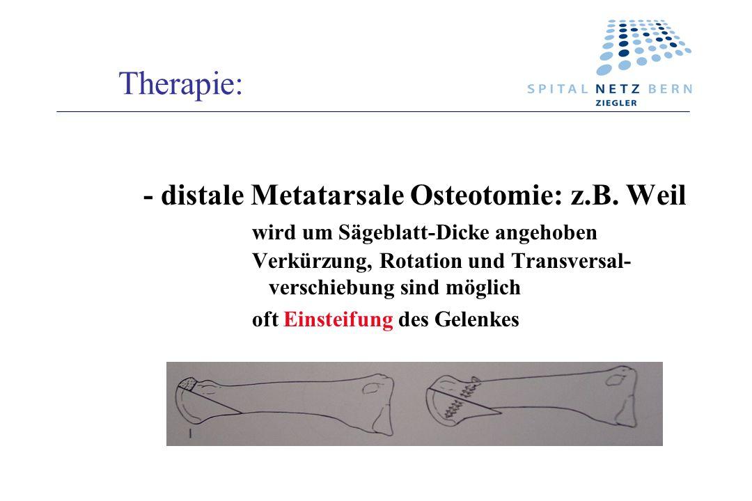 Therapie: - distale Metatarsale Osteotomie: z.B. Weil wird um Sägeblatt-Dicke angehoben Verkürzung, Rotation und Transversal- verschiebung sind möglic