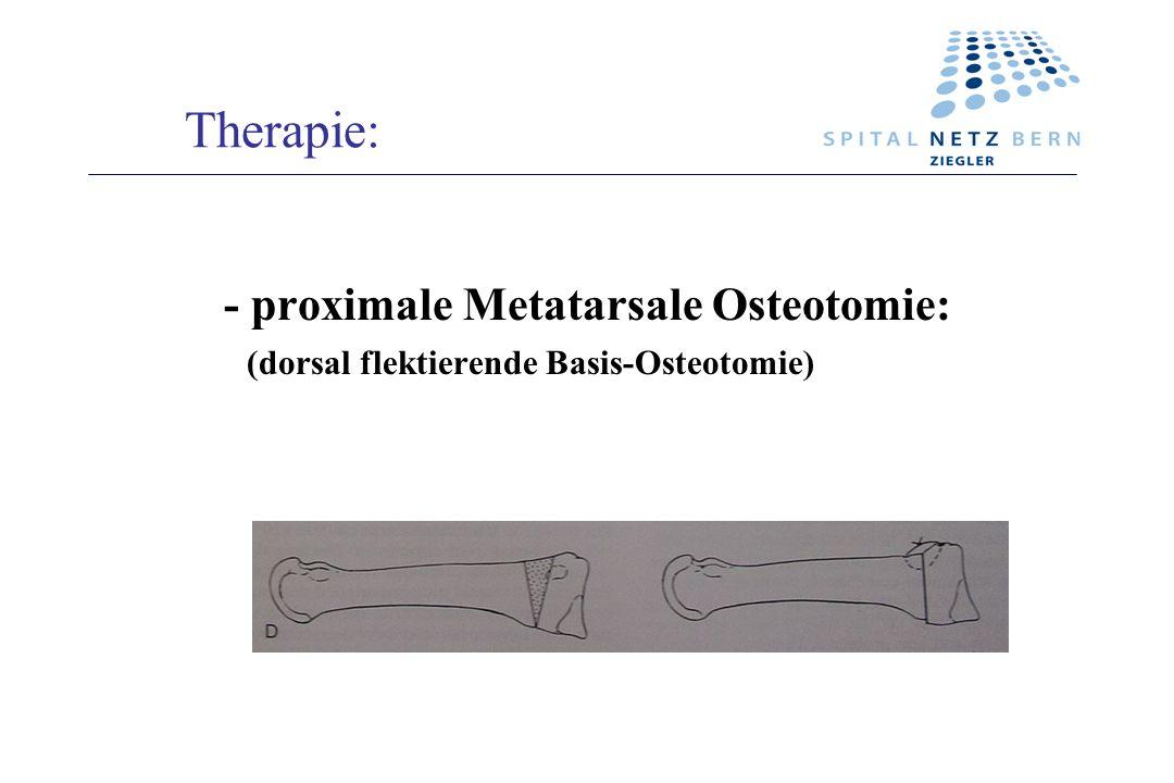 Therapie: - proximale Metatarsale Osteotomie: (dorsal flektierende Basis-Osteotomie)