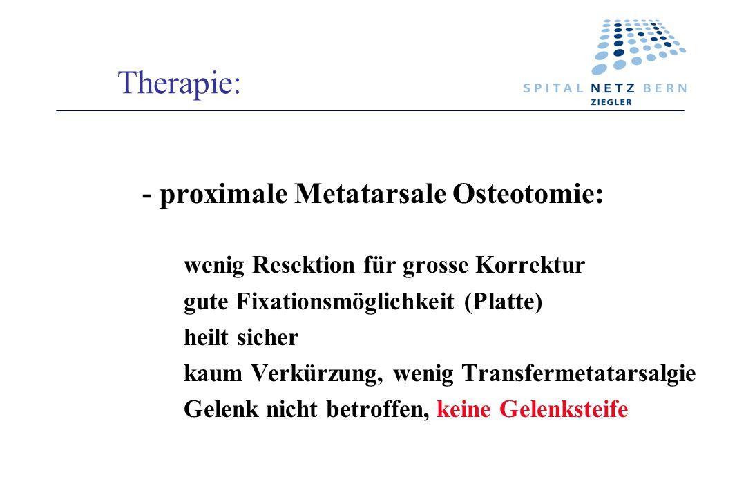 Therapie: - proximale Metatarsale Osteotomie: wenig Resektion für grosse Korrektur gute Fixationsmöglichkeit (Platte) heilt sicher kaum Verkürzung, we