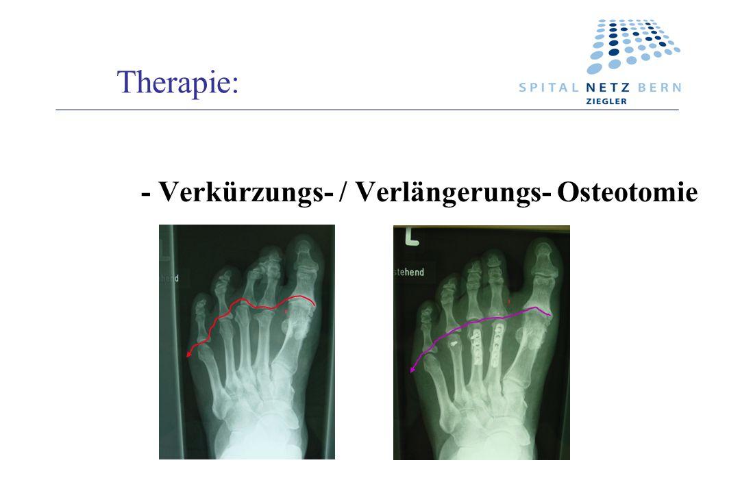 Therapie: - Verkürzungs- / Verlängerungs- Osteotomie