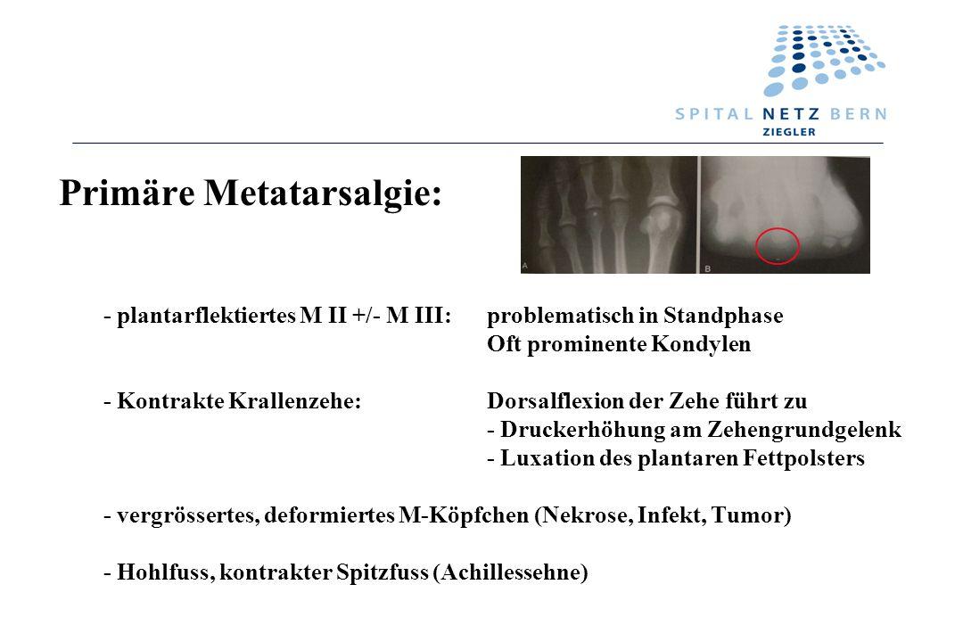 - plantarflektiertes M II +/- M III:problematisch in Standphase Oft prominente Kondylen - Kontrakte Krallenzehe:Dorsalflexion der Zehe führt zu - Druc