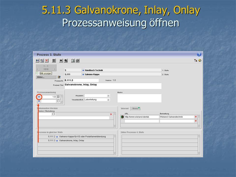 5.11.3 Galvanokrone, Inlay, Onlay Prozessanweisung öffnen