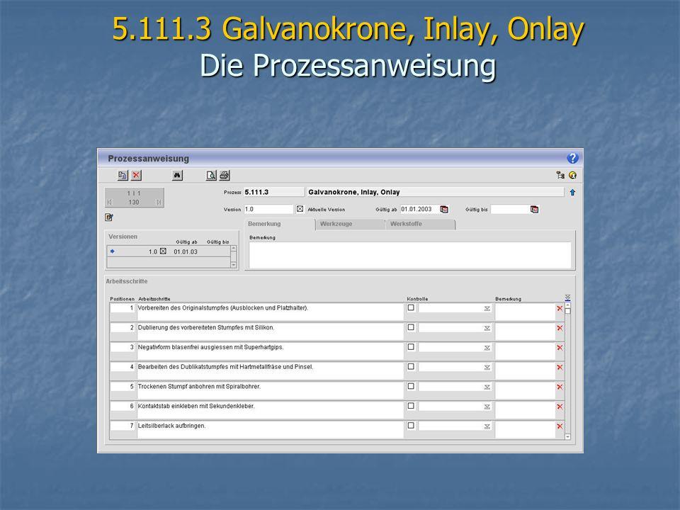 5.111.3 Galvanokrone, Inlay, Onlay Die Prozessanweisung