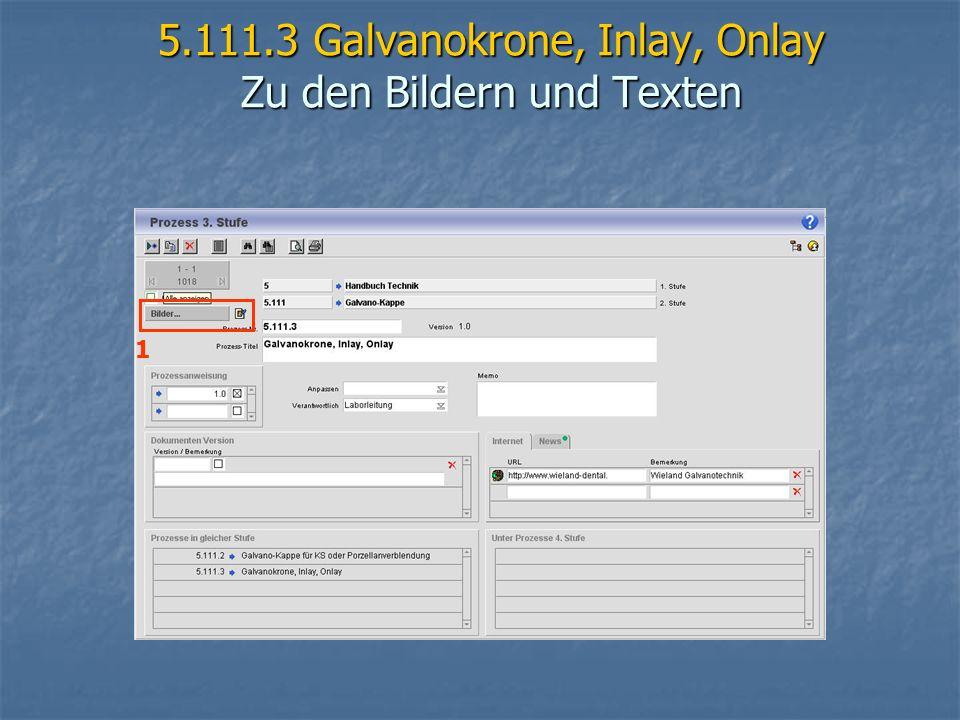 5.111.3 Galvanokrone, Inlay, Onlay Zu den Bildern und Texten 1