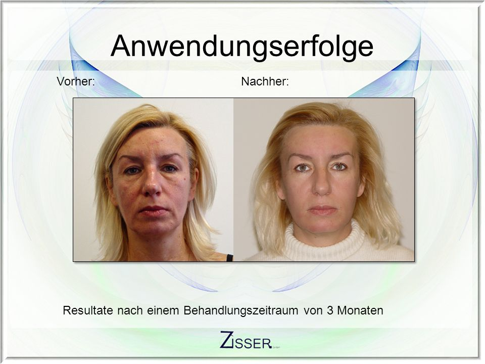 Anwendungserfolge Vorher: Nachher: Resultate nach einem Behandlungszeitraum von 2 Monaten