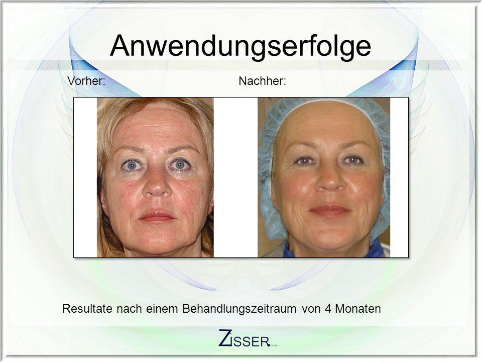 Anwendungserfolge Vorher:Nachher: Resultate nach einem Behandlungszeitraum von 3 Monaten