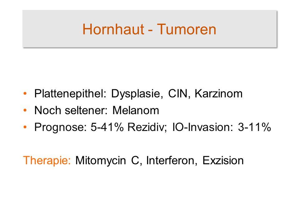 Hornhaut - Tumoren Plattenepithel: Dysplasie, CIN, Karzinom Noch seltener: Melanom Prognose: 5-41% Rezidiv; IO-Invasion: 3-11% Therapie: Mitomycin C,