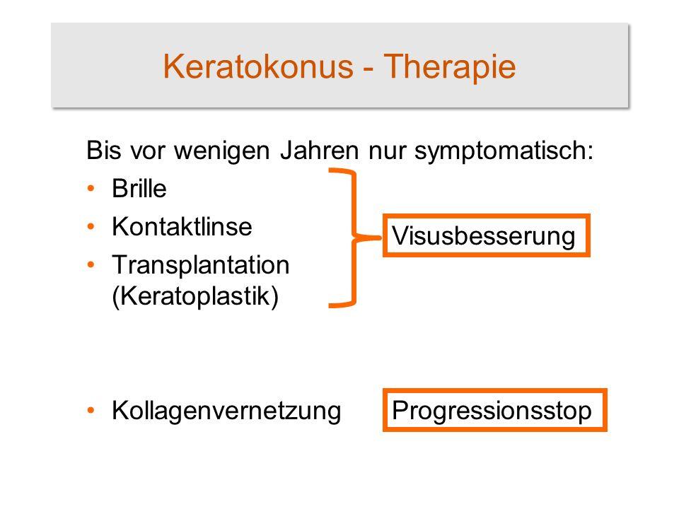 Keratokonus - Therapie Bis vor wenigen Jahren nur symptomatisch: Brille Kontaktlinse Transplantation (Keratoplastik) Kollagenvernetzung Progressionsst