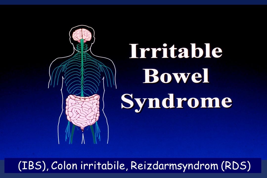 (IBS), Colon irritabile, Reizdarmsyndrom (RDS)