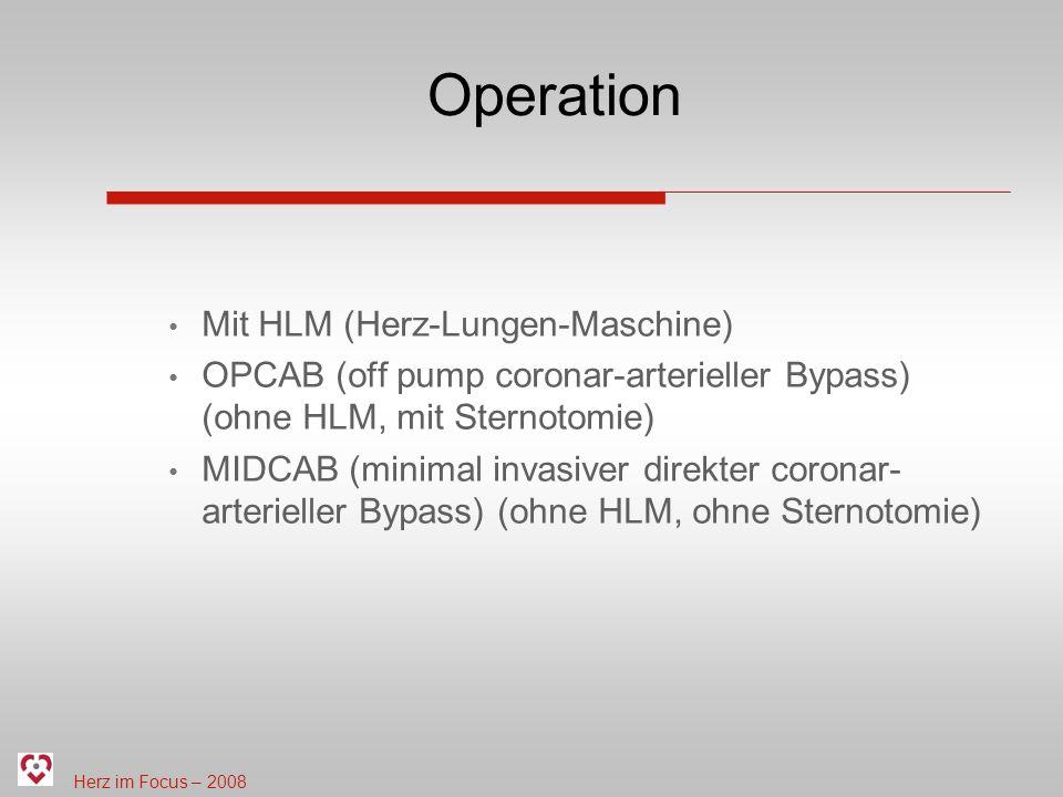 Herz im Focus – 2008 Operation Mit HLM (Herz-Lungen-Maschine) OPCAB (off pump coronar-arterieller Bypass) (ohne HLM, mit Sternotomie) MIDCAB (minimal invasiver direkter coronar- arterieller Bypass) (ohne HLM, ohne Sternotomie)